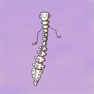 Spinal Stenosis Artwork