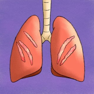 Idiopathic Pulmonary Fibrosis (IPF) Artwork