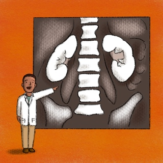 Post-Contrast AKI: A Nephrology Perspective Artwork