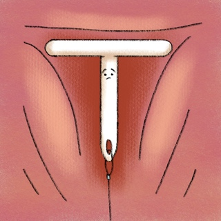 Why Take Out An IUD? Artwork
