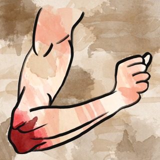 The Painful Pediatric Elbow Artwork