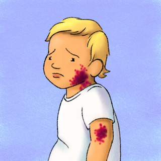 Petechiae in Kids Artwork